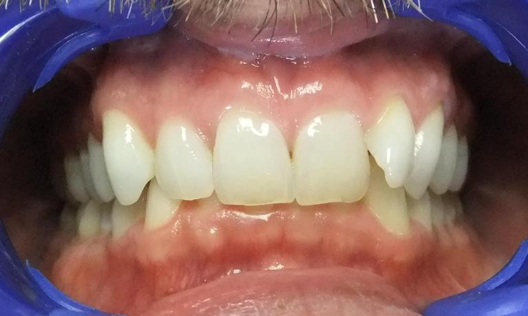 ClearCorrect-Before-Image